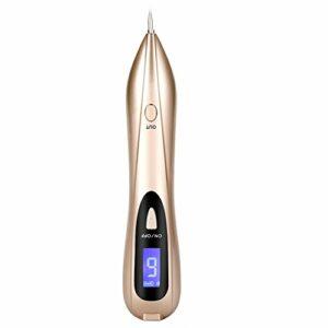 Stylo de suppression d'acrochordons, verrue, tache de rousseur, grains de beauté, points noirs et petit tatouage – Chargement USB